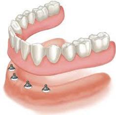 implant-dentures