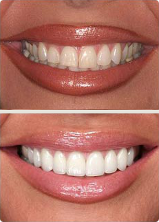 porcelain-crowns-before-after